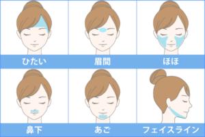 顔の施術できる箇所
