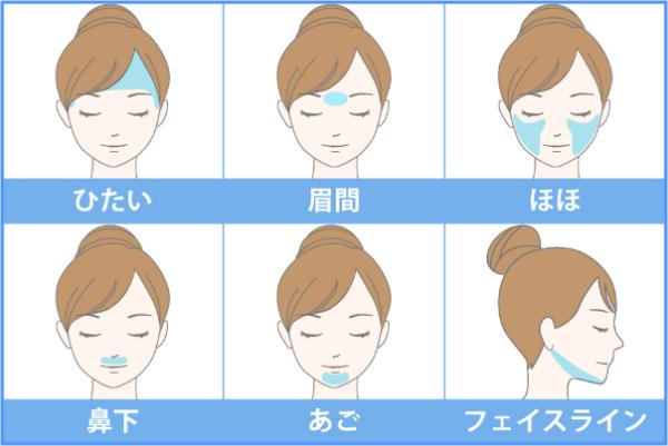 顔の施術可能箇所