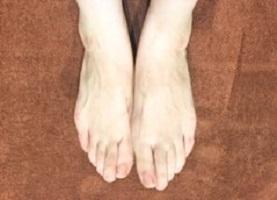 全身脱毛 足の画像