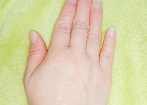 全身脱毛 手の指の画像
