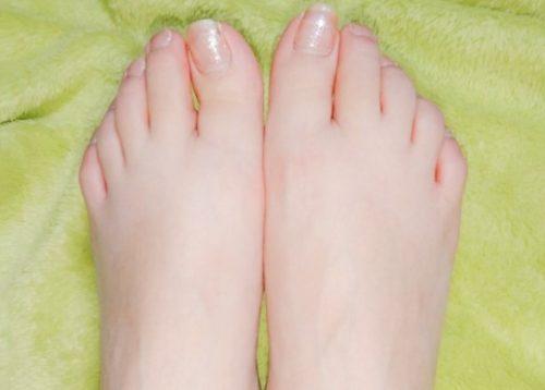 全身脱毛 足の指の画像