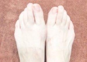 脚の指の画像